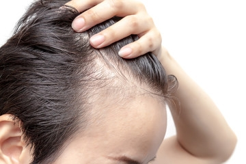 Looking for the best Hair loss treatment in Melbou