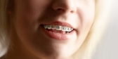Orthodontics in Melbourne