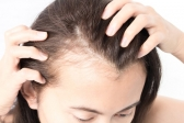 female baldness solutions Androgenic alopecia