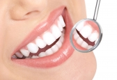 Affordable and Effective Teeth Whitening in Caulfi