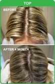 Natural and Effective Hair Loss Treatment in Adela