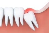 Wisdom Tooth Extraction | Tooth Extraction