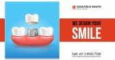 Replace Missing Teeth with Dental Implants in Caul