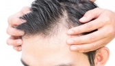 Are You Suffering from Male Pattern Baldness?