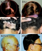 What Happens in an Alopecia Treatment?