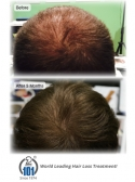 Don't Waste Time! Get the Best Hair Loss Treatment