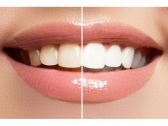 Professional Laser Teeth Whitening Treatment in Ad