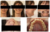 Digital Smile Design Treatment in Melbourne by Hea